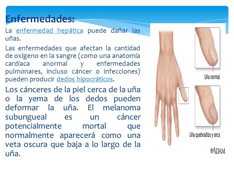 Moderno Anatomía De La Uña Del Dedo Bosquejo - Imágenes de Anatomía ...