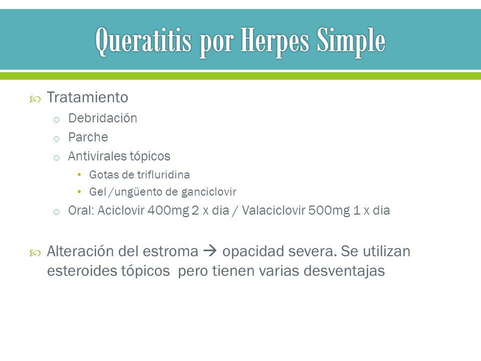 Tratamiento de herpes simple oral