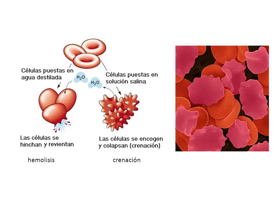 hemolisis crenación
