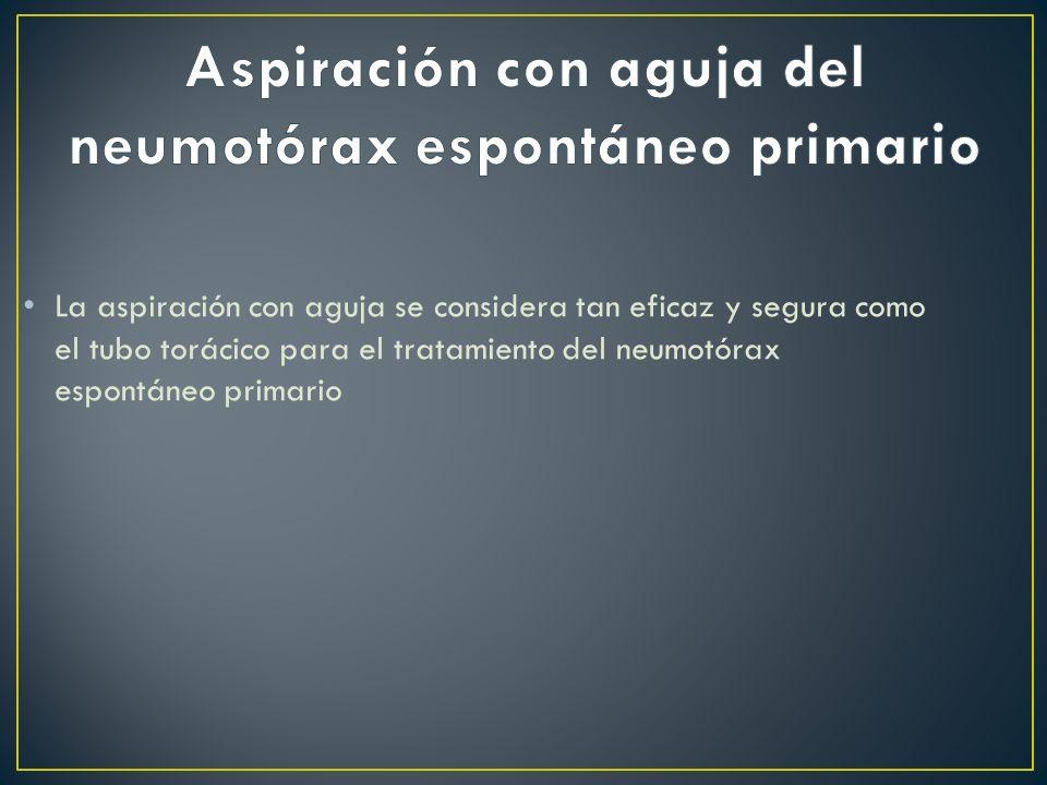 Aspiración con aguja del neumotórax espontáneo primario
