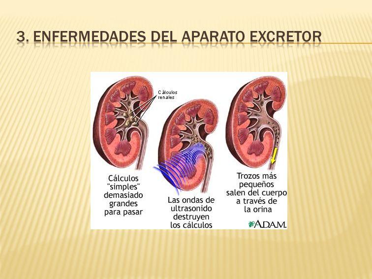 3. Enfermedades del aparato excretor