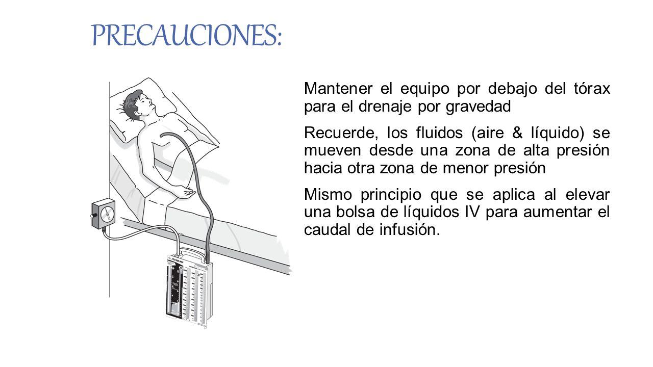 PRECAUCIONES: Mantener el equipo por debajo del tórax para el drenaje por gravedad.