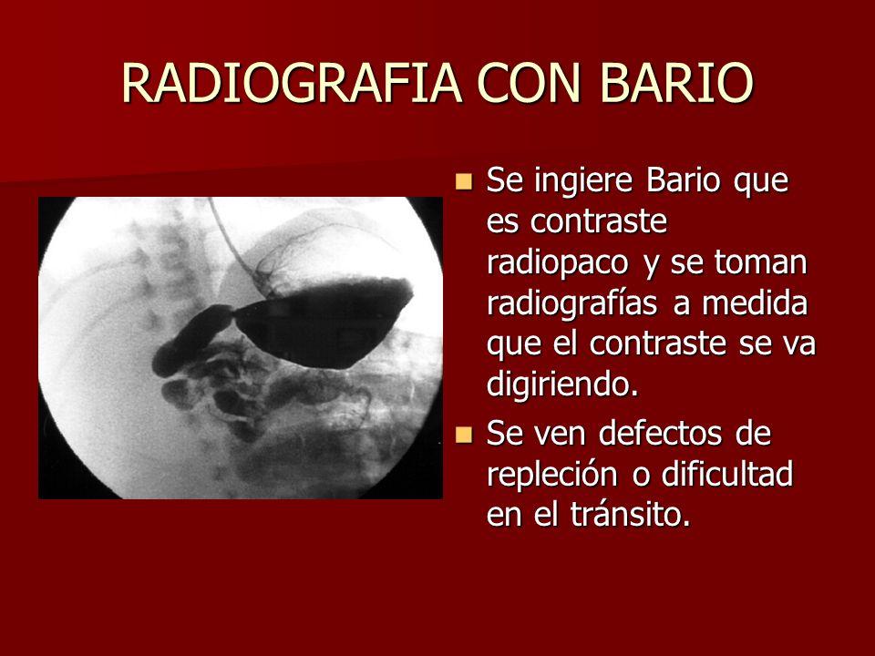 Encantador Ingestión De Bario Anatomía Composición - Imágenes de ...