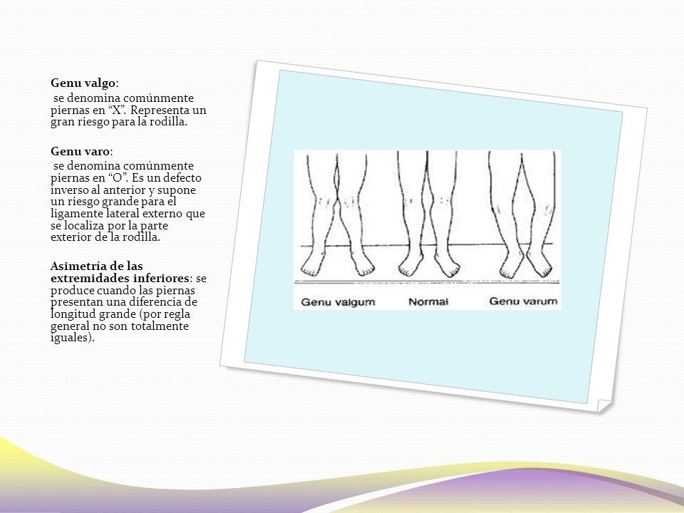Genu valgo: se denomina comúnmente piernas en X . Representa un gran riesgo para la rodilla. Genu varo:
