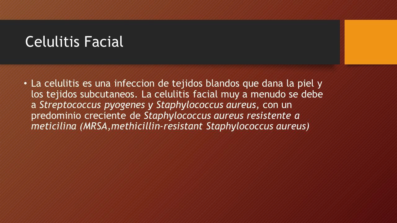 Celulitis Facial