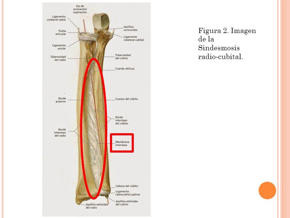 Famoso Anatomía Del Radio Y El Cúbito Composición - Anatomía de Las ...