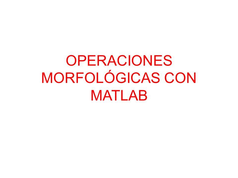 OPERACIONES MORFOLÓGICAS CON MATLAB