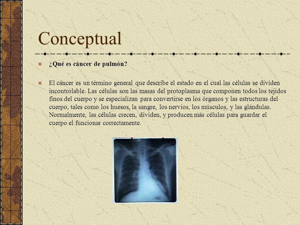 Conceptual ¿Qué es cáncer de pulmón