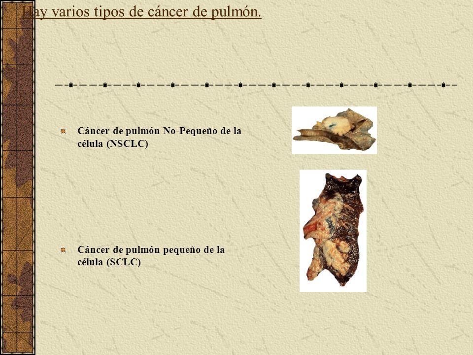 Hay varios tipos de cáncer de pulmón.