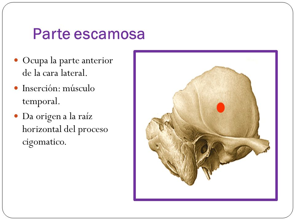Dorable Proceso Cigomático Cresta - Imágenes de Anatomía Humana ...