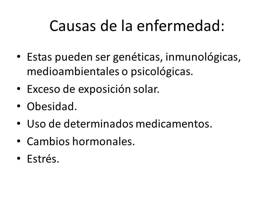 Causas de la enfermedad: