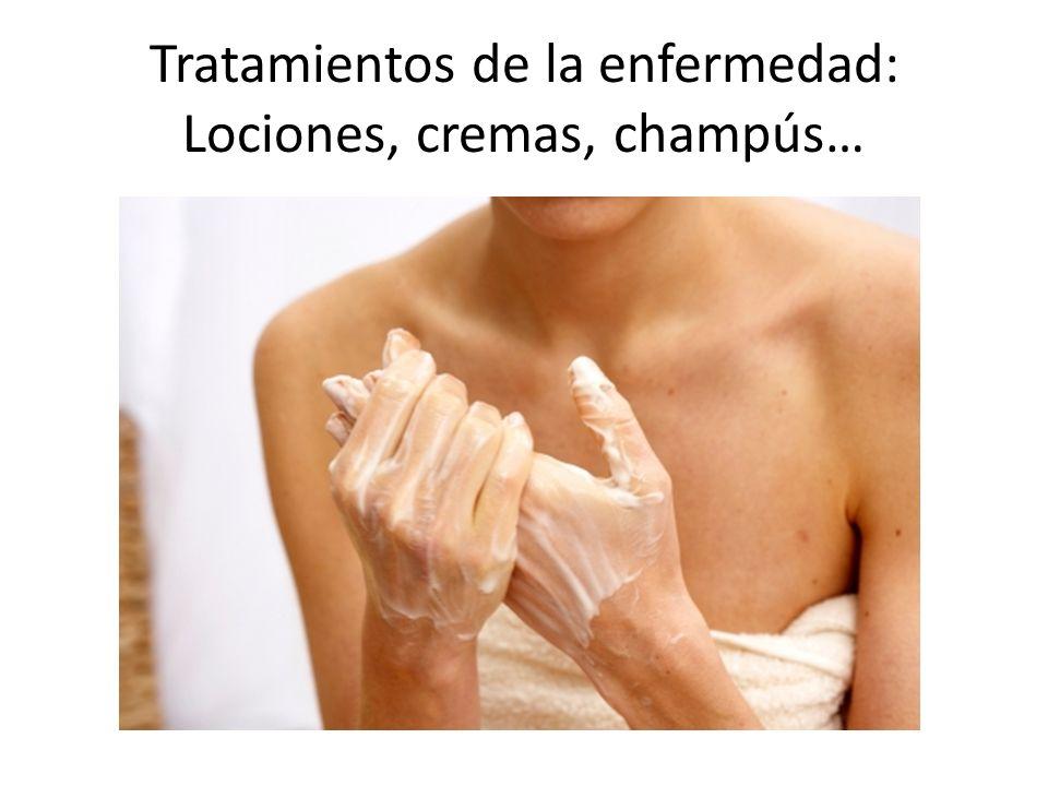 Tratamientos de la enfermedad: Lociones, cremas, champús…