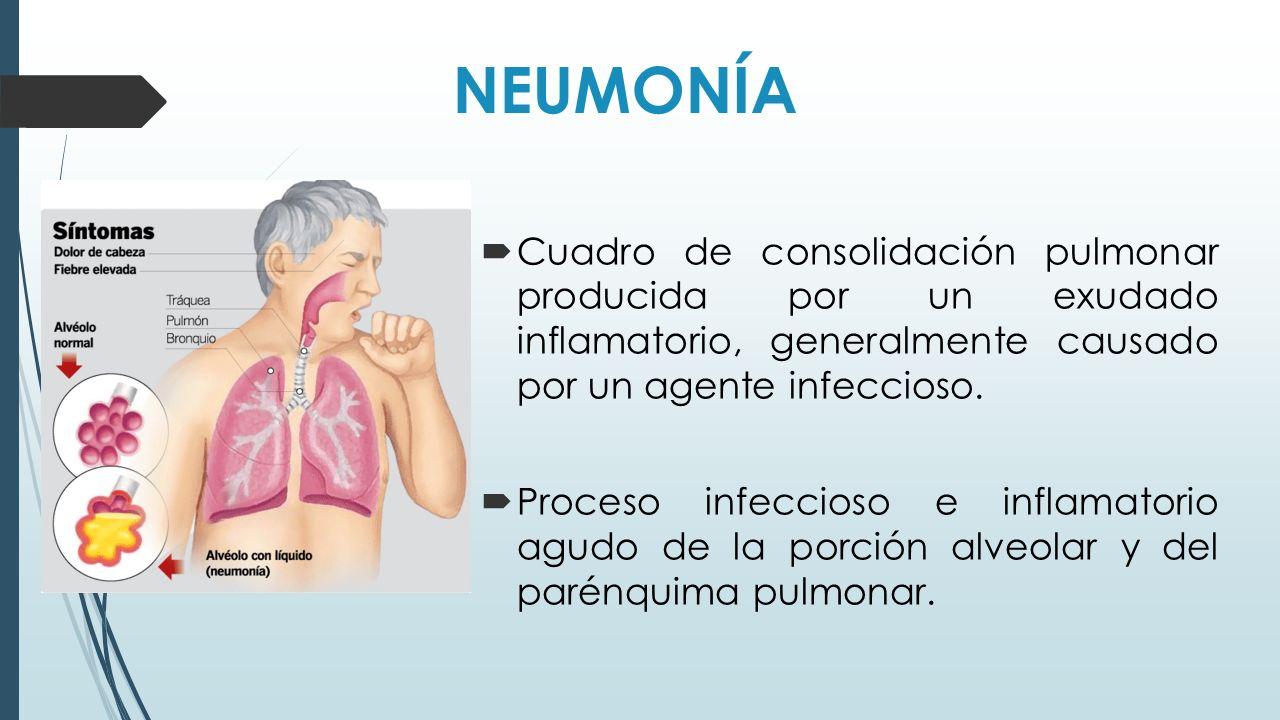 NEUMONÍA Cuadro de consolidación pulmonar producida por un exudado inflamatorio, generalmente causado por un agente infeccioso.