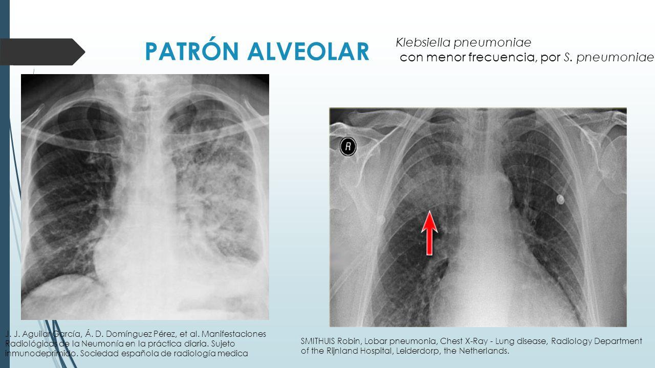 PATRÓN ALVEOLAR Klebsiella pneumoniae
