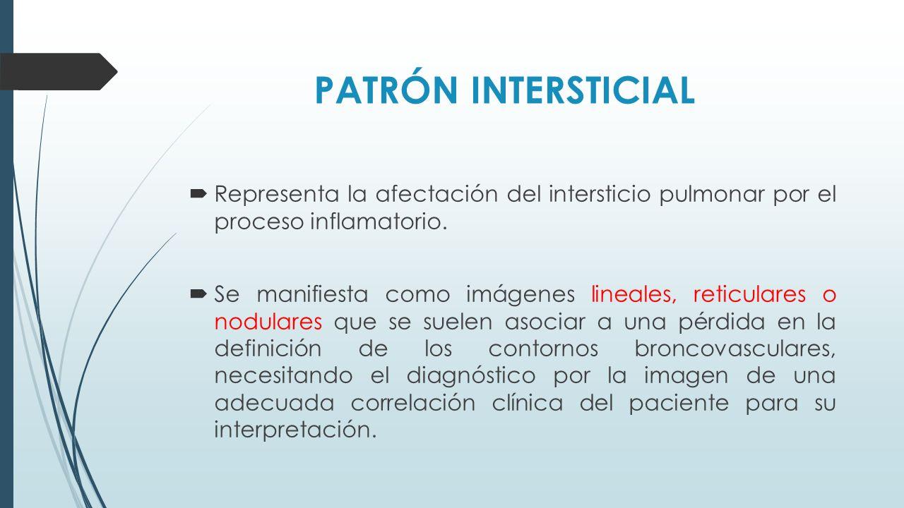 PATRÓN INTERSTICIAL Representa la afectación del intersticio pulmonar por el proceso inflamatorio.