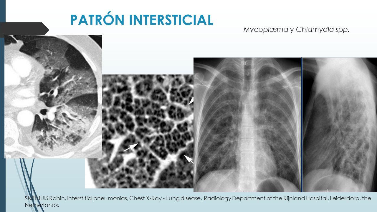PATRÓN INTERSTICIAL Mycoplasma y Chlamydia spp.