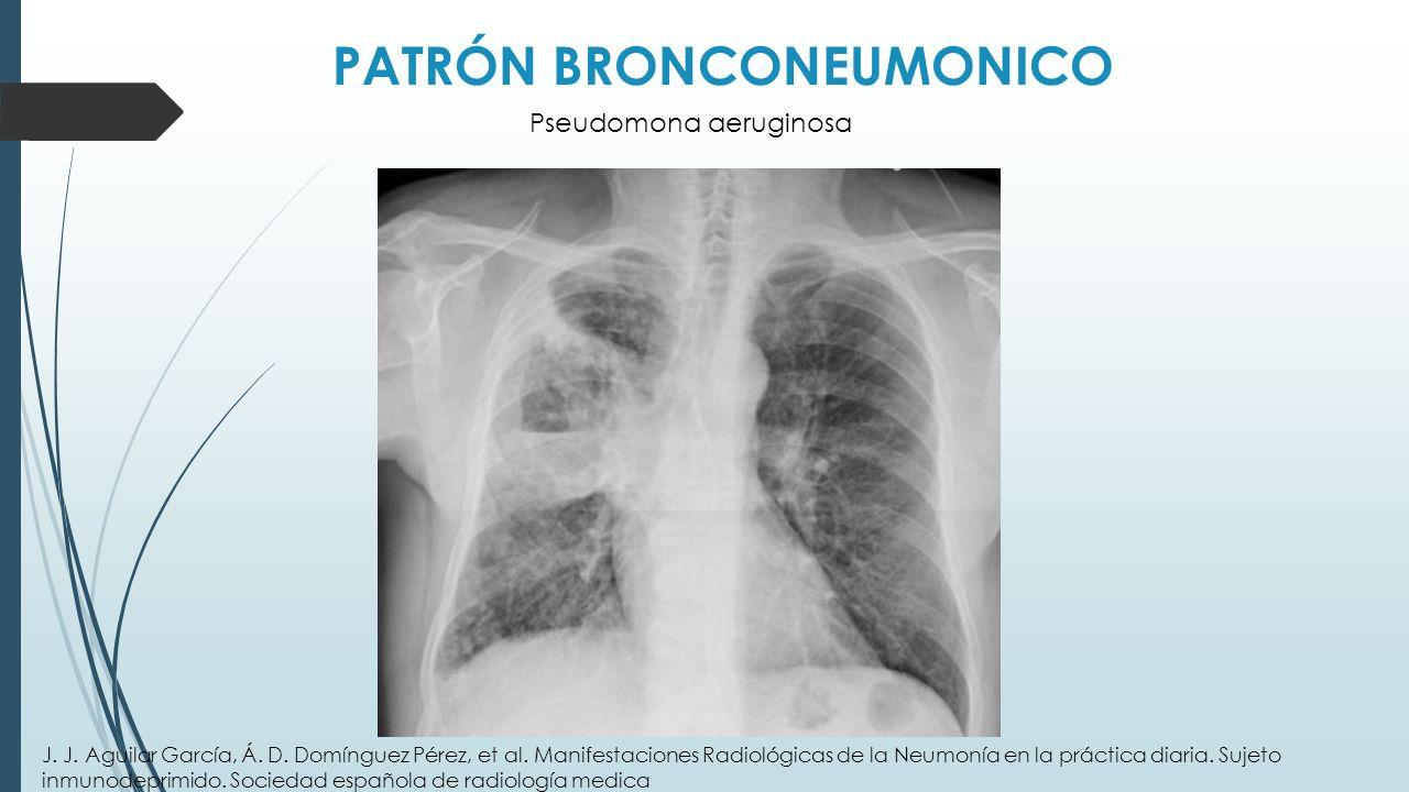PATRÓN BRONCONEUMONICO