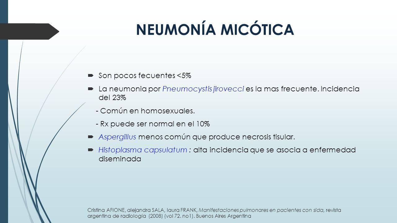 NEUMONÍA MICÓTICA Son pocos fecuentes <5%