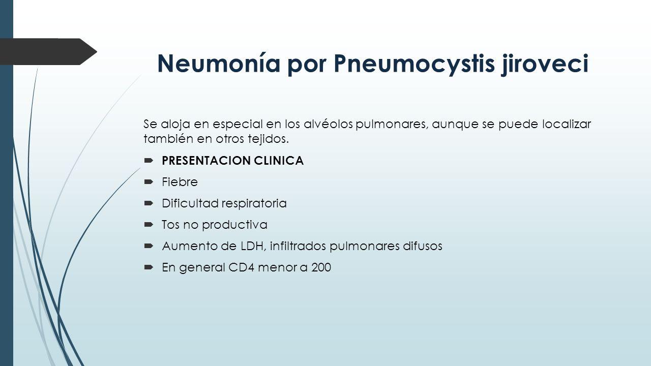 Neumonía por Pneumocystis jiroveci