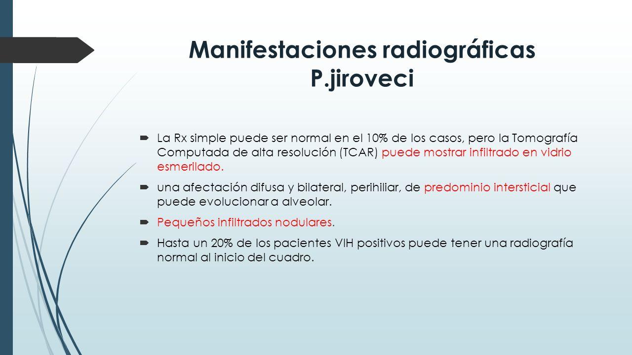 Manifestaciones radiográficas P.jiroveci