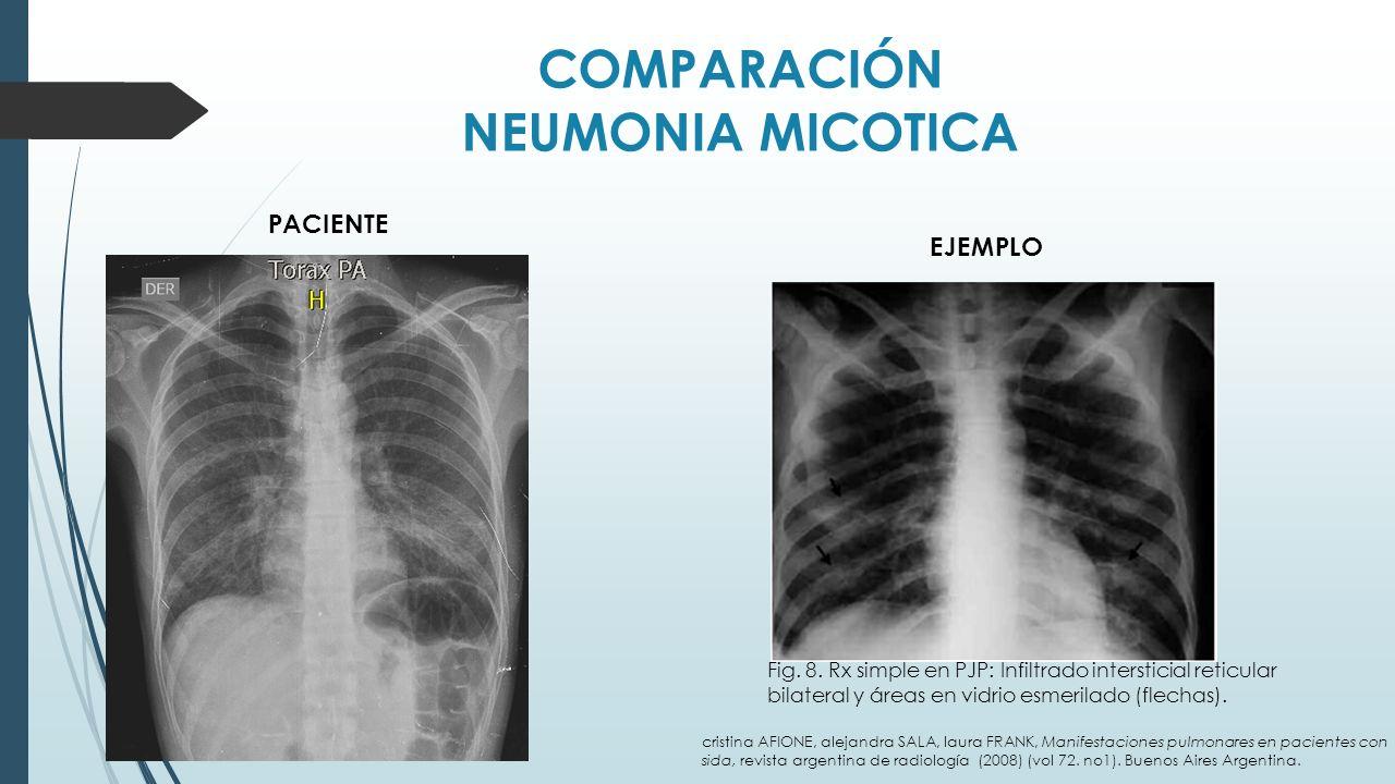 COMPARACIÓN NEUMONIA MICOTICA