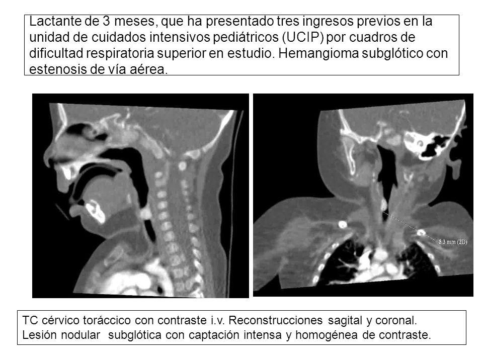 Contemporáneo La Anatomía De La Vía Aérea Pediátrica Molde ...