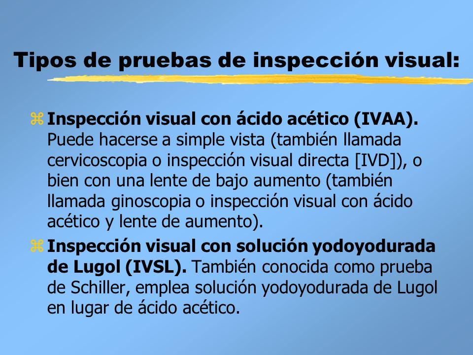 Tipos de pruebas de inspección visual: