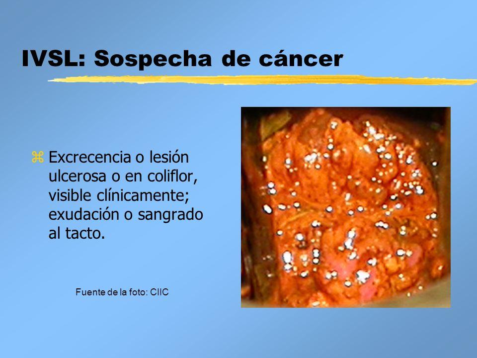 IVSL: Sospecha de cáncer