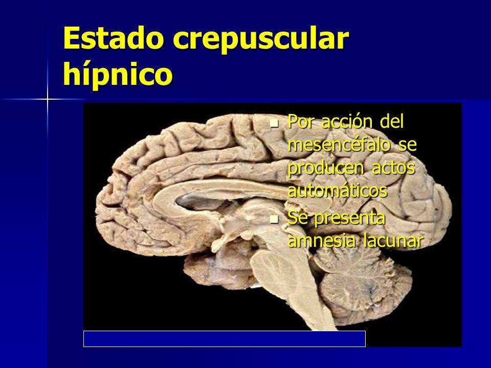 Estado crepuscular hípnico