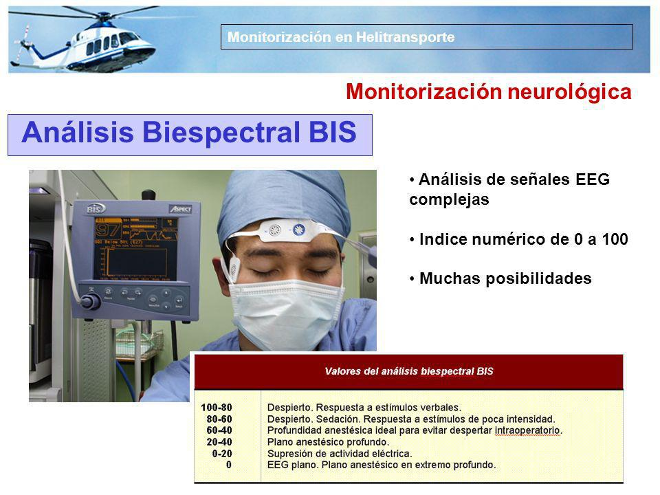 Monitorización neurológica Análisis Biespectral BIS