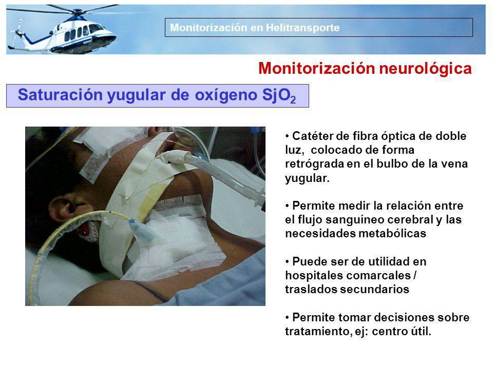 Monitorización neurológica Saturación yugular de oxígeno SjO2