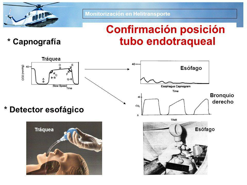 Confirmación posición tubo endotraqueal