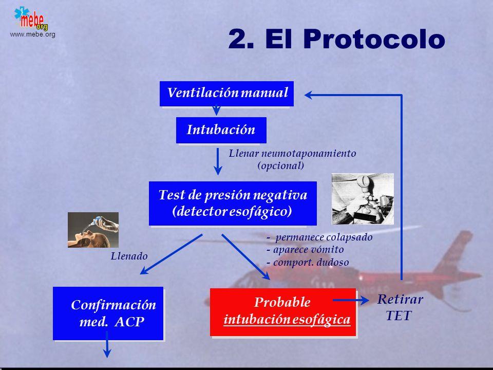 2. El Protocolo Ventilación manual Intubación Test de presión negativa