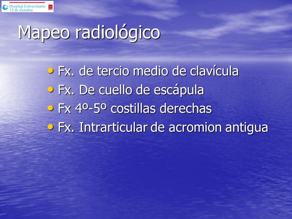 Mapeo radiológico Fx. de tercio medio de clavícula