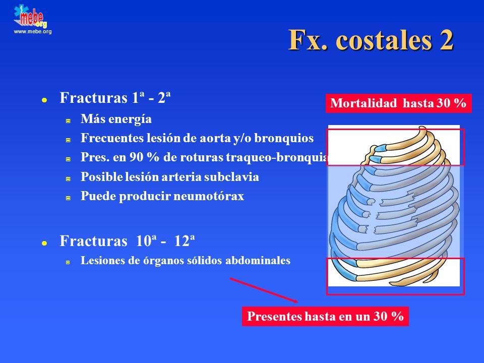 Fx. costales 2 Fracturas 1ª - 2ª Fracturas 10ª - 12ª Más energía