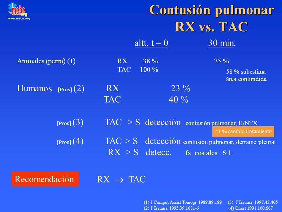 Contusión pulmonar RX vs. TAC