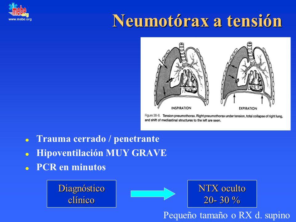Neumotórax a tensión Trauma cerrado / penetrante