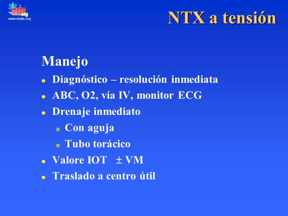 NTX a tensión Manejo Diagnóstico – resolución inmediata