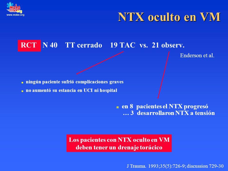 Los pacientes con NTX oculto en VM deben tener un drenaje torácico
