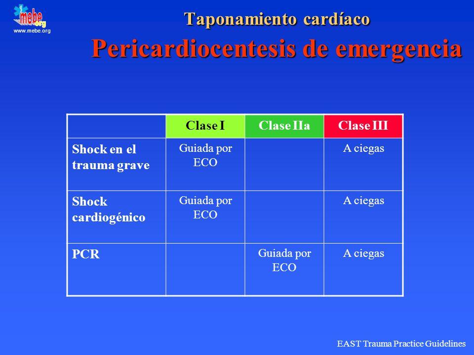 Taponamiento cardíaco Pericardiocentesis de emergencia