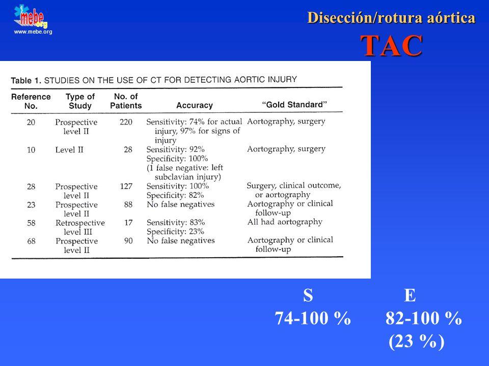 Disección/rotura aórtica TAC
