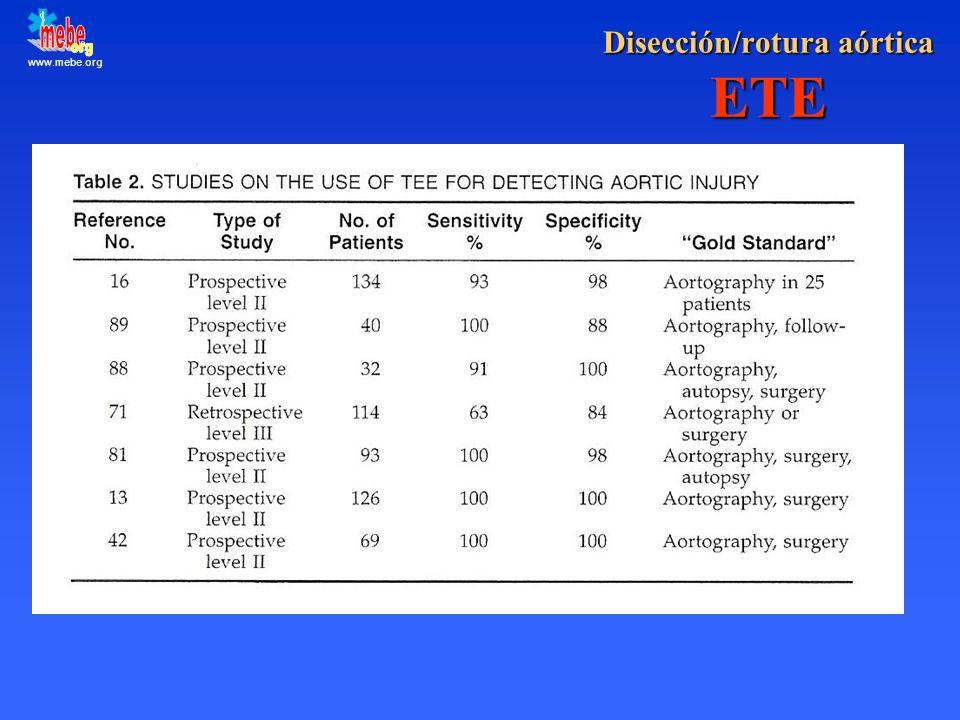Disección/rotura aórtica ETE