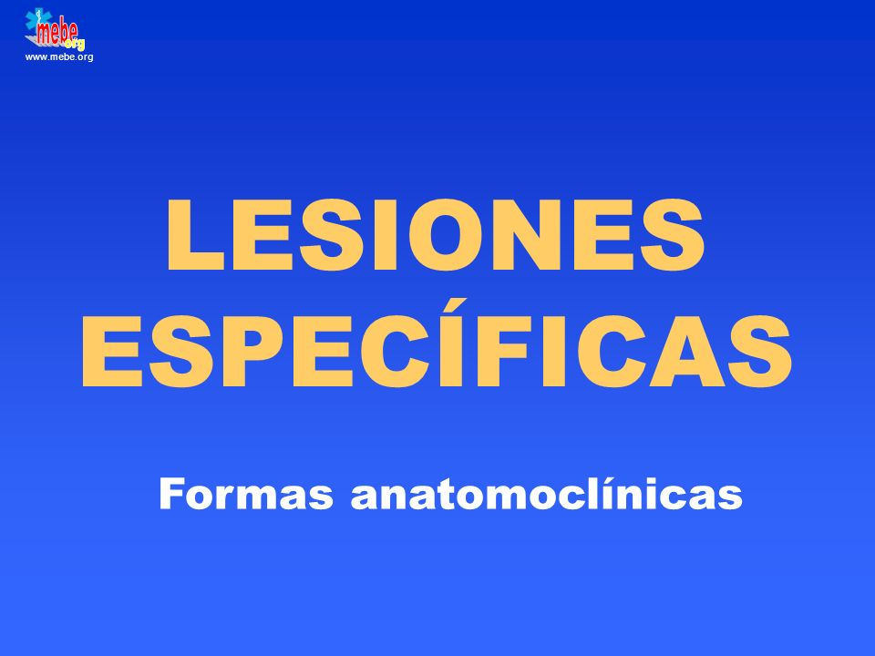Formas anatomoclínicas