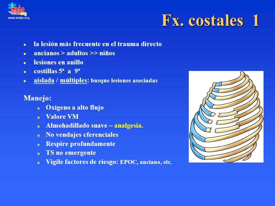 Fx. costales 1 Manejo: la lesión más frecuente en el trauma directo