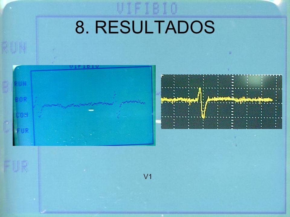 8. RESULTADOS V1