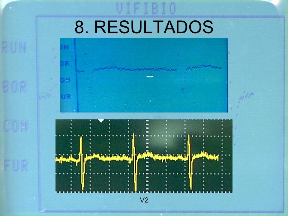 8. RESULTADOS V2