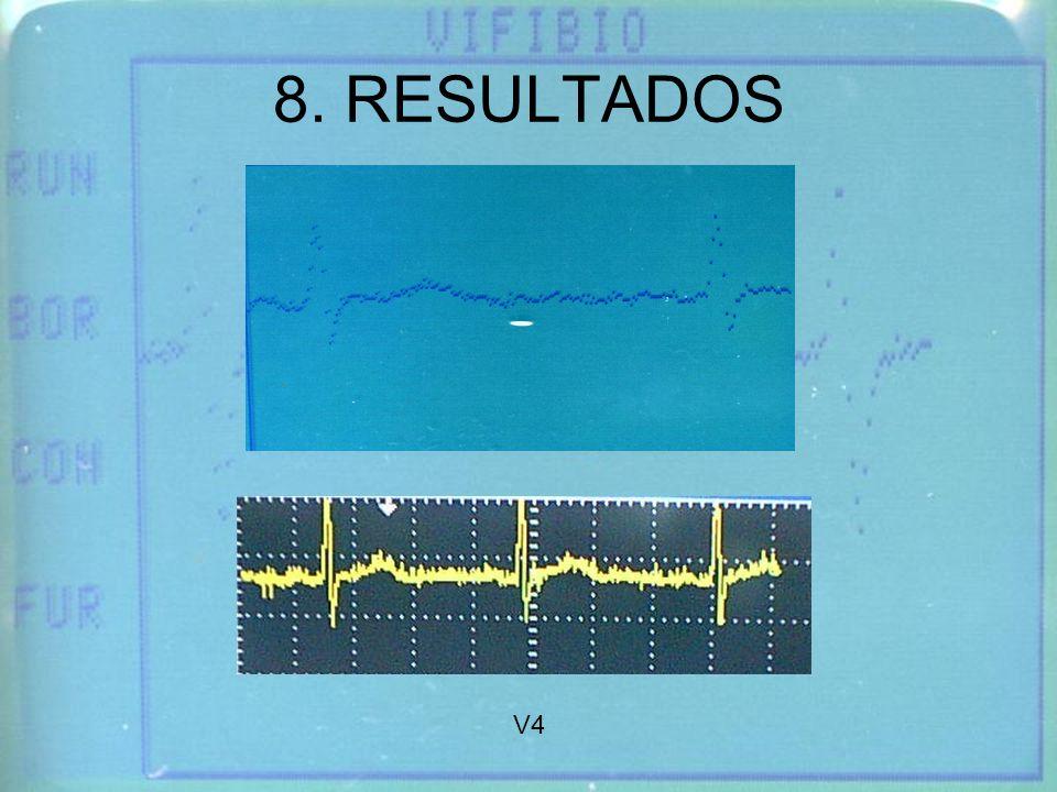 8. RESULTADOS V4
