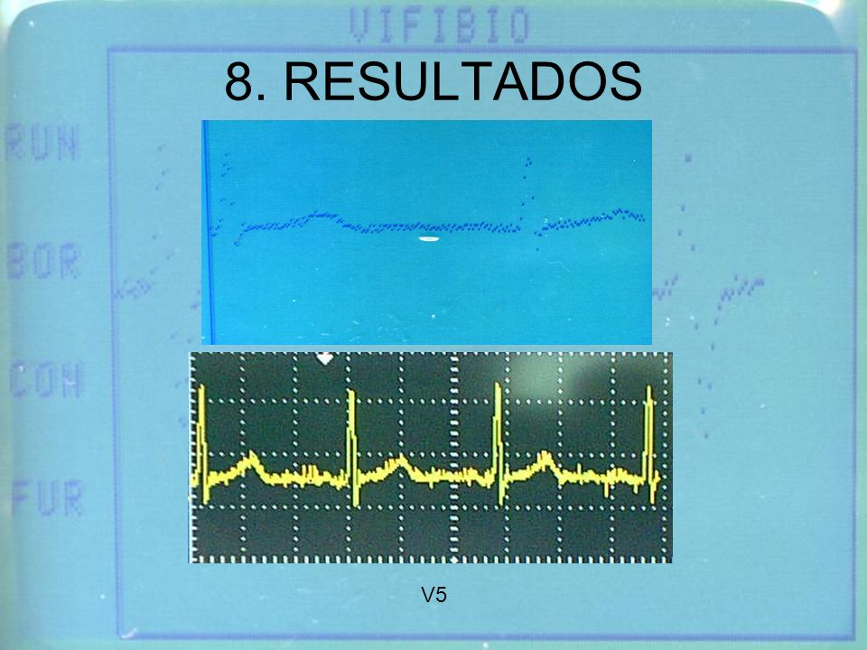8. RESULTADOS V5