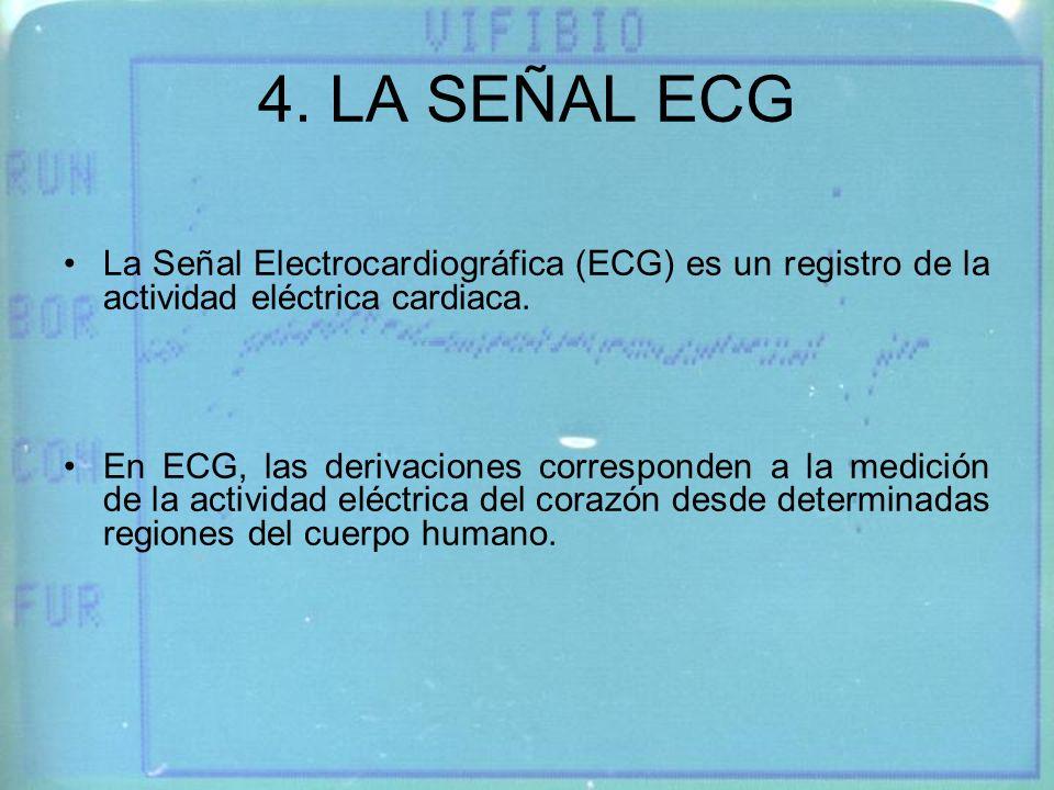 4. LA SEÑAL ECG La Señal Electrocardiográfica (ECG) es un registro de la actividad eléctrica cardiaca.