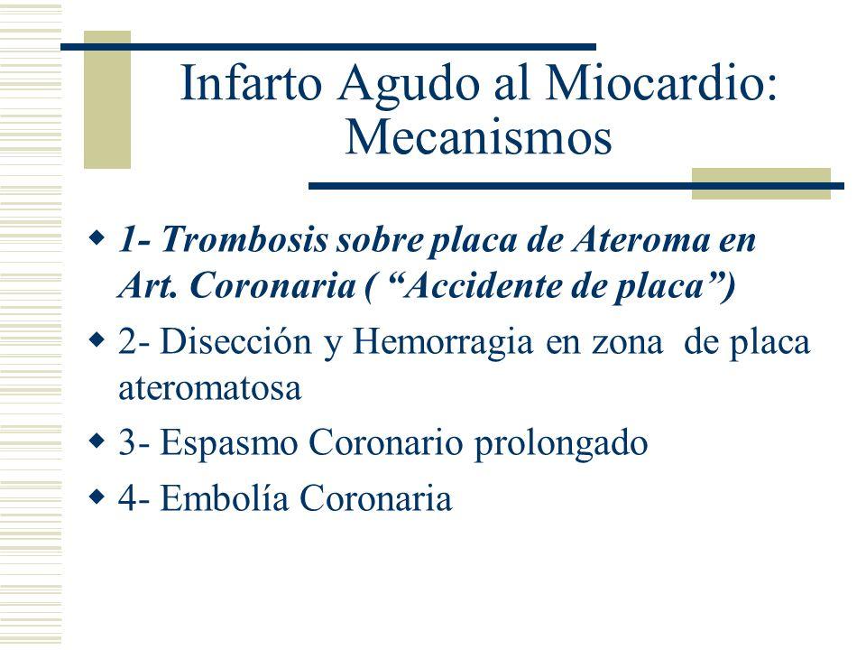 Infarto Agudo al Miocardio: Mecanismos